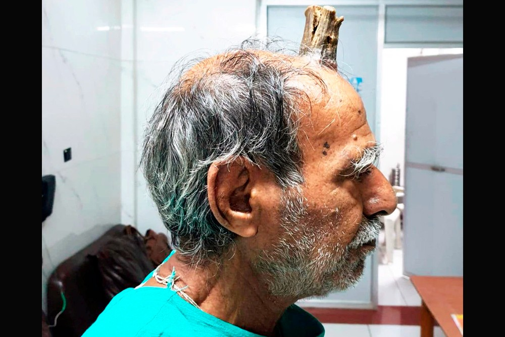 Рог дьявола вырос у мужчины на голове
