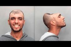 Бандит лишился больше половины головы, выжил и продолжил криминальную жизнь