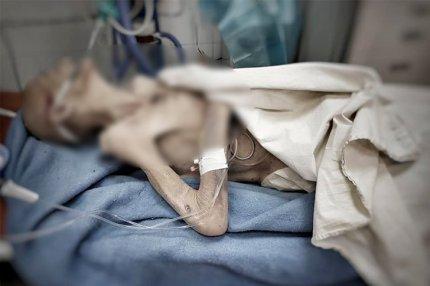 Женщина истощена до состояния живой мумии