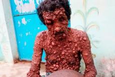 65-летний житель Индии Дивакар Бизой с головы до пят покрыт доброкачественными опухолями