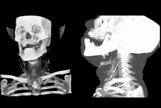 75 поломанных игл, оставшиеся в теле после неудачных инъекций