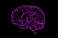 Схема мозга.