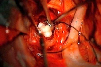 Зубы в мозге у младенцы