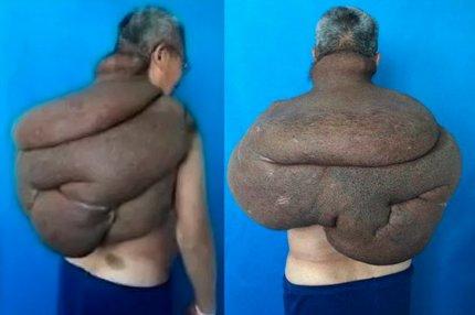 Мужчина с огромной 15-килограммовой опухолью