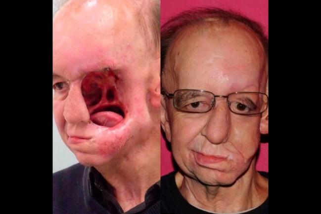 Хирург напечатал пациенту протез лица и ротовой имплантат на 3D-принтере