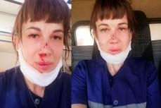 В Энгельсе на вызове избили сотрудника скорой помощи