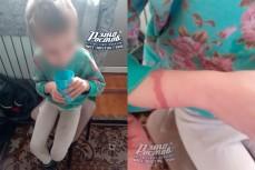 Мать держала свою дочку дома на привязи без еды