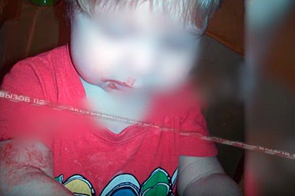 Ребёнок с кровоподтёками на лице и руке