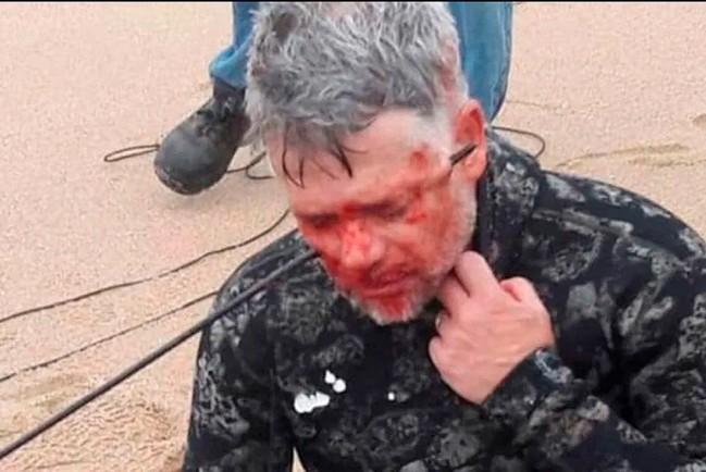 Пастор Конни Хэллоуэлл выстрелил себе в лицо из подводного ружья