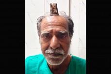 На голове вырос десятисантиметровый рог